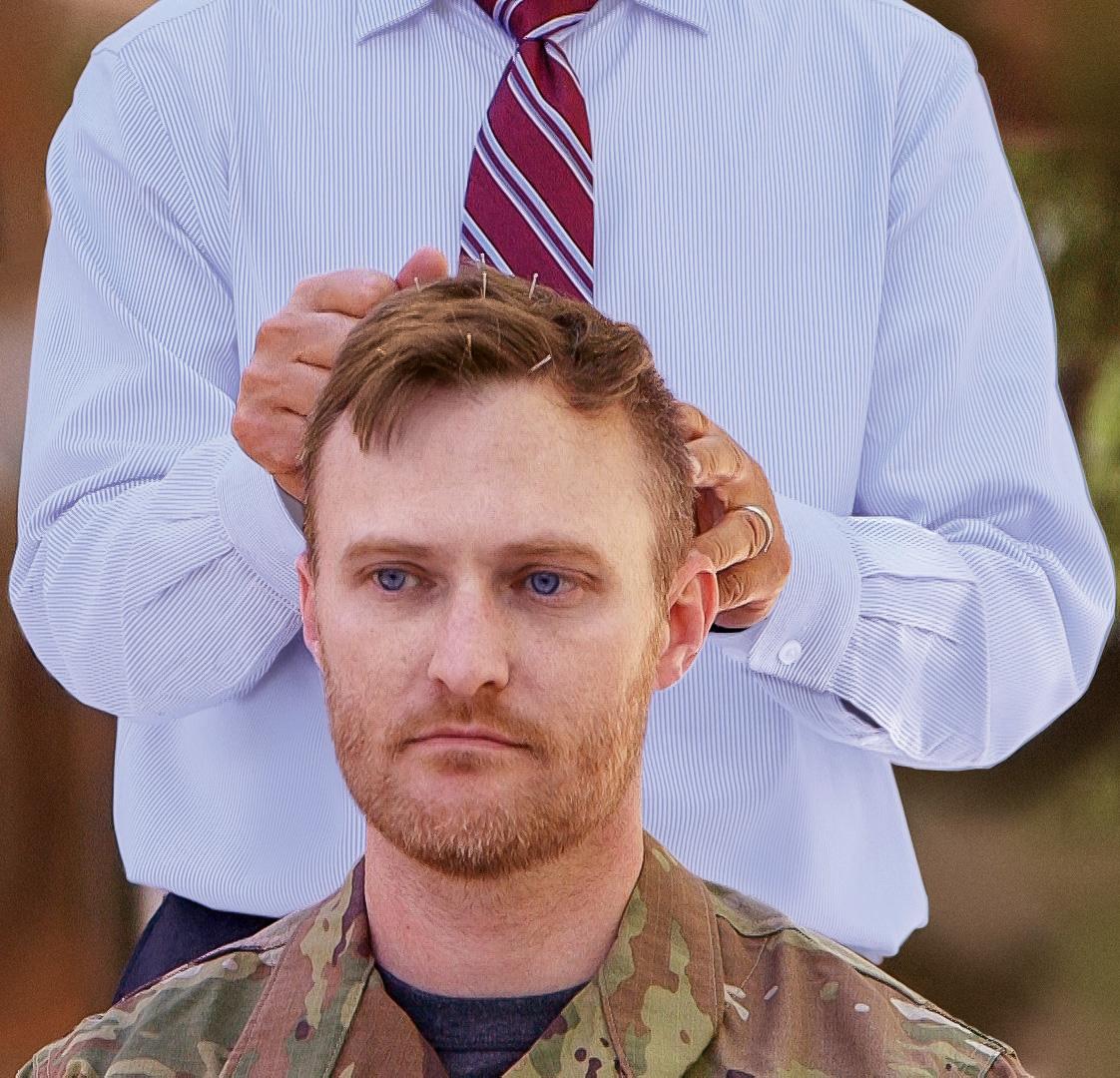 Neuroacupuncture for Veterans