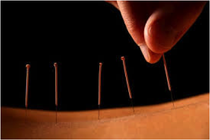 This is a picture of needles going into someone's skin