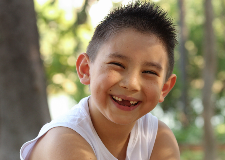 Young boy grinning with missing front teeth