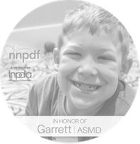 Chronic Neurovisceral ASMD (NPA/B)