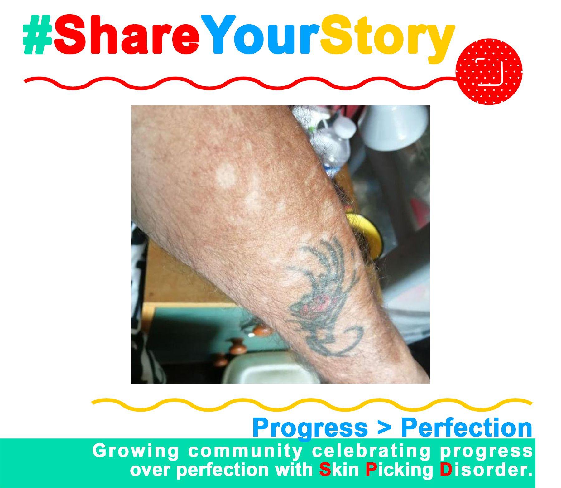 #ShareYourStory: Steve