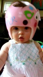 Piper's Orthotic Helmet