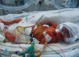 Abusive Head Trauma Shaken Baby Syndrome