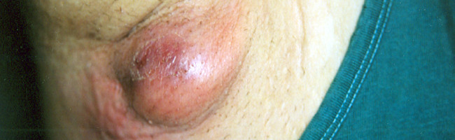Do You Have Hidradenitis Suppurativa?