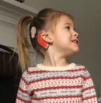 Delia wears cochlear implants.