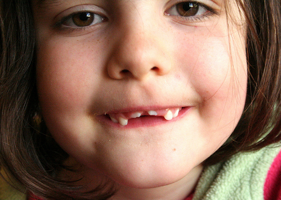 What if my child chips or breaks a tooth?