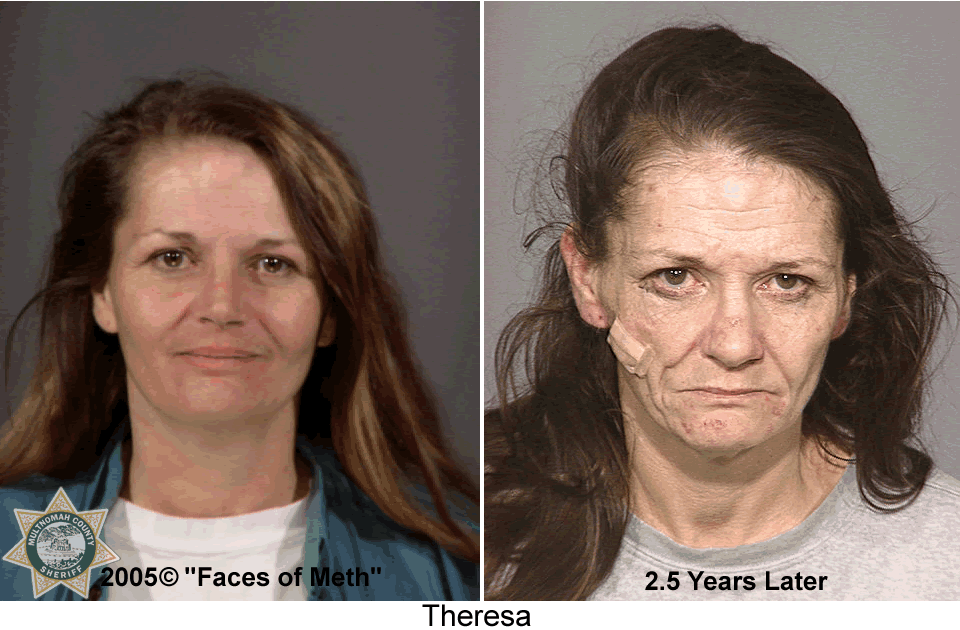 pictures-of-facial-effects-of-fae
