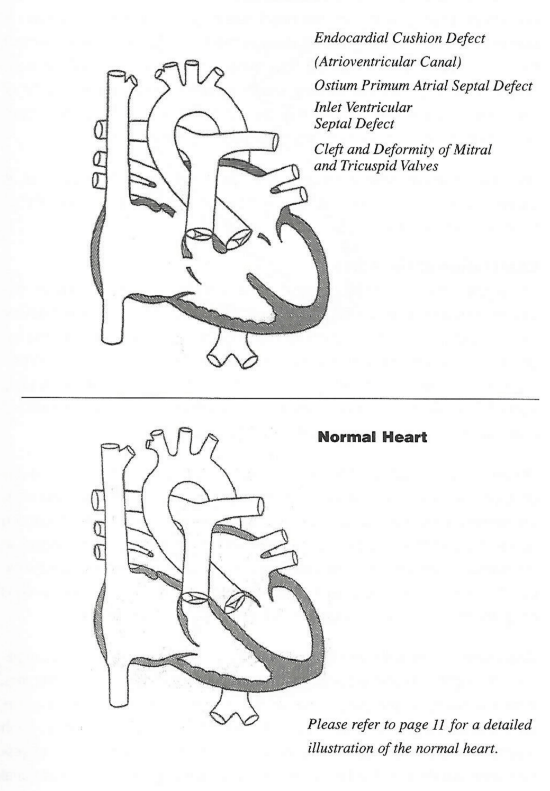 Atrioventricular Septal Defect (AVSD)