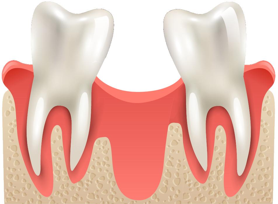BEFORE: Bone Augmentation