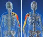 Rotator Cuff Injury & Shoulder Pain