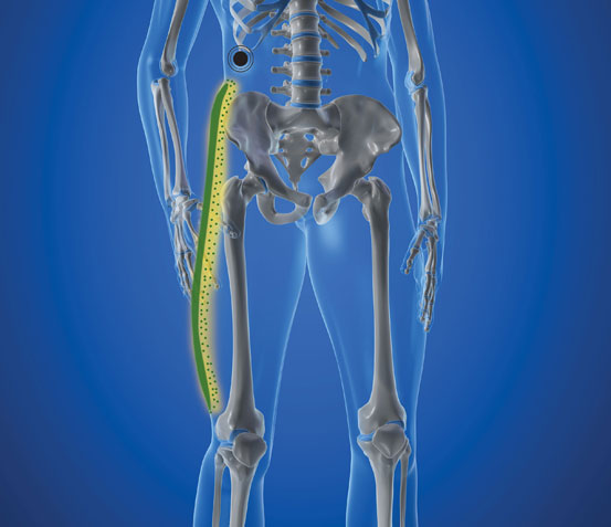 Lateral Femoral Cutaneous Nerve