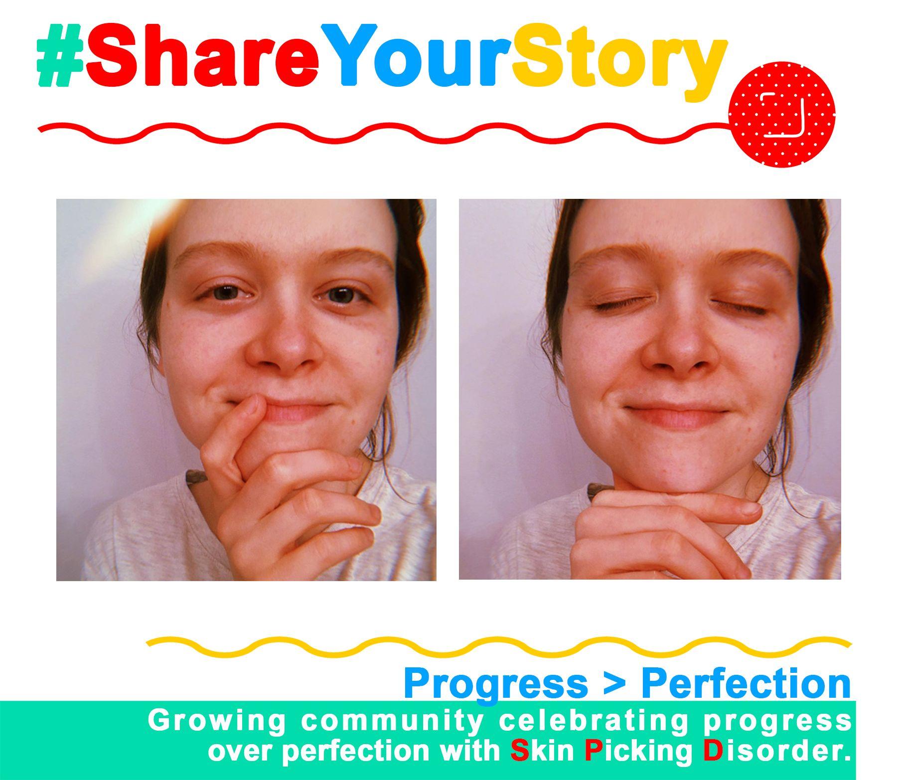 #ShareYourStory: Breanna