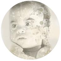 Infantile Neurovisceral ASMD (NPA)