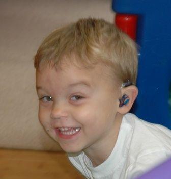 Deacon wears hearing aids.