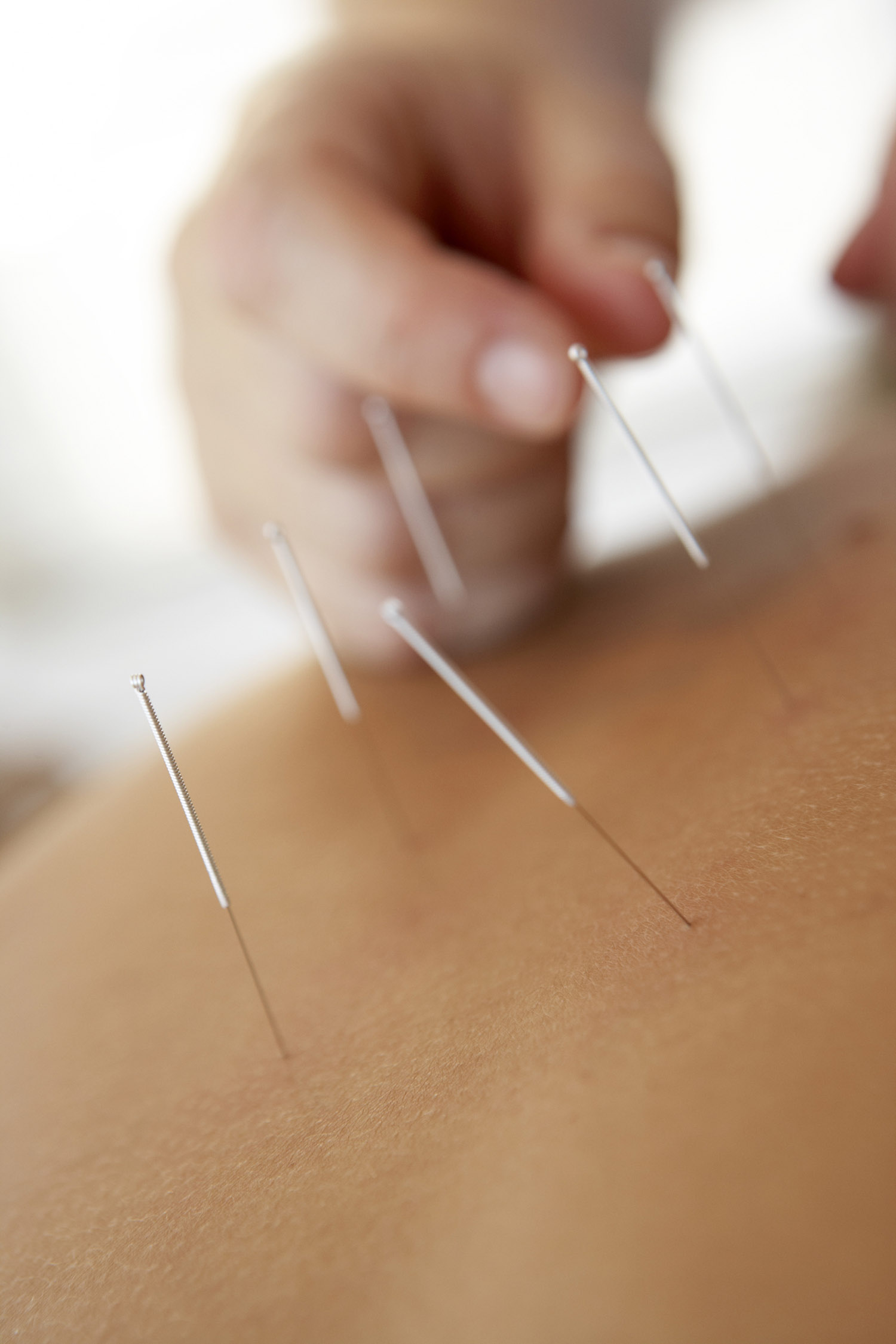Acupuncture Workshop