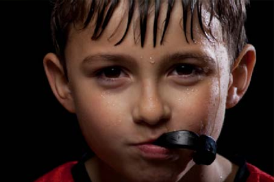 Does my child need a mouth guard to play sports? What kind should I choose?