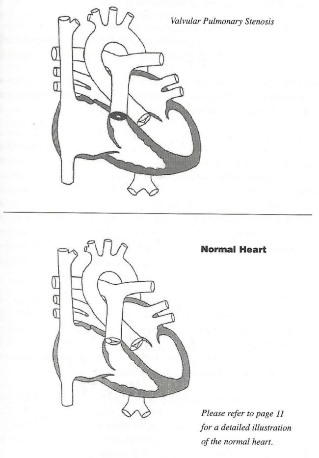 Pulmonary Stenosis