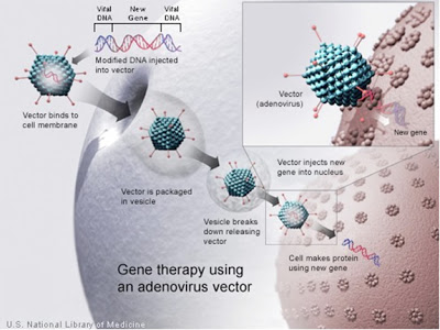This is a picture of gene therapy using an adenovirus vector