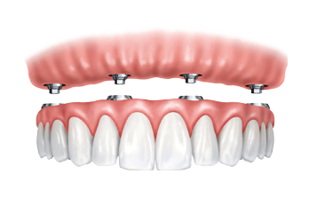 What To Know About Full Arch Dental Implants