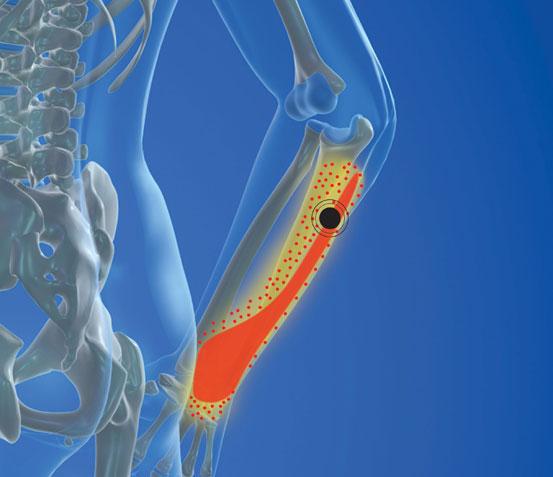 Tennis Elbow & Lateral Epicondylitis