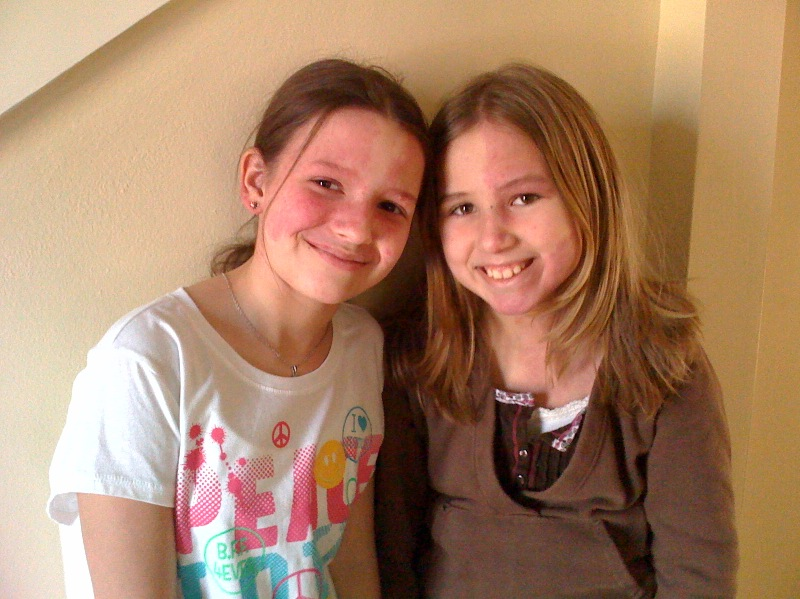 Living with Sturge-Weber Syndrome