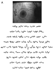 This is a picture of an eye with eye with progressive retinal degeneration