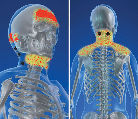 Whiplash & Accident Related Injuries
