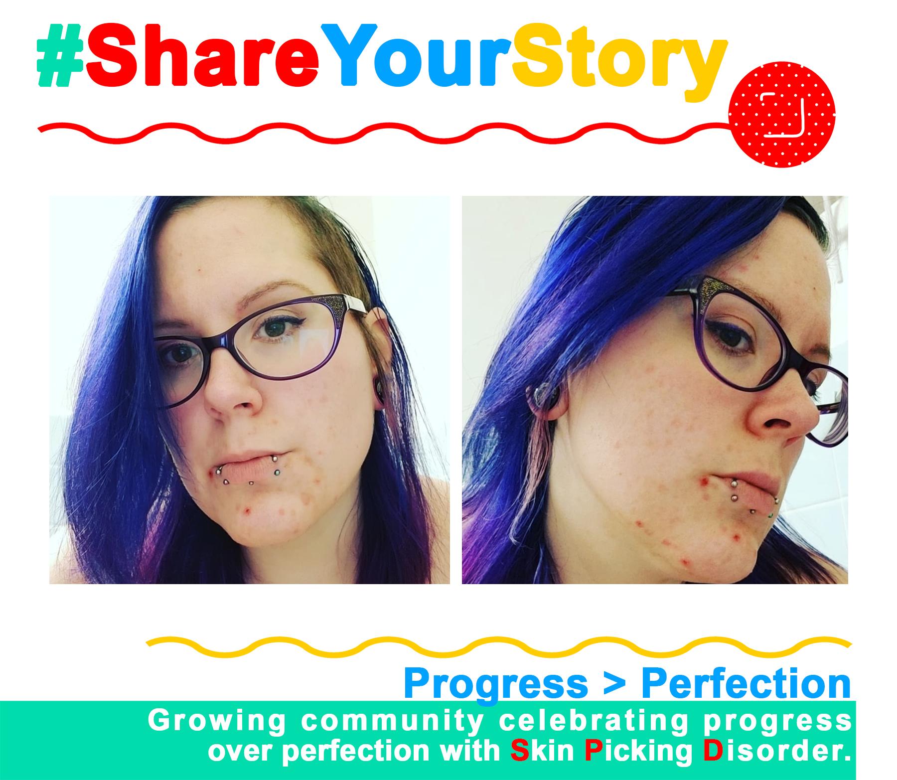 #ShareYourStory: Mia