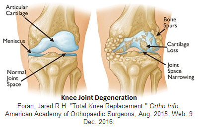 Pain and stiffness of the knee could be caused by osteoarthritis