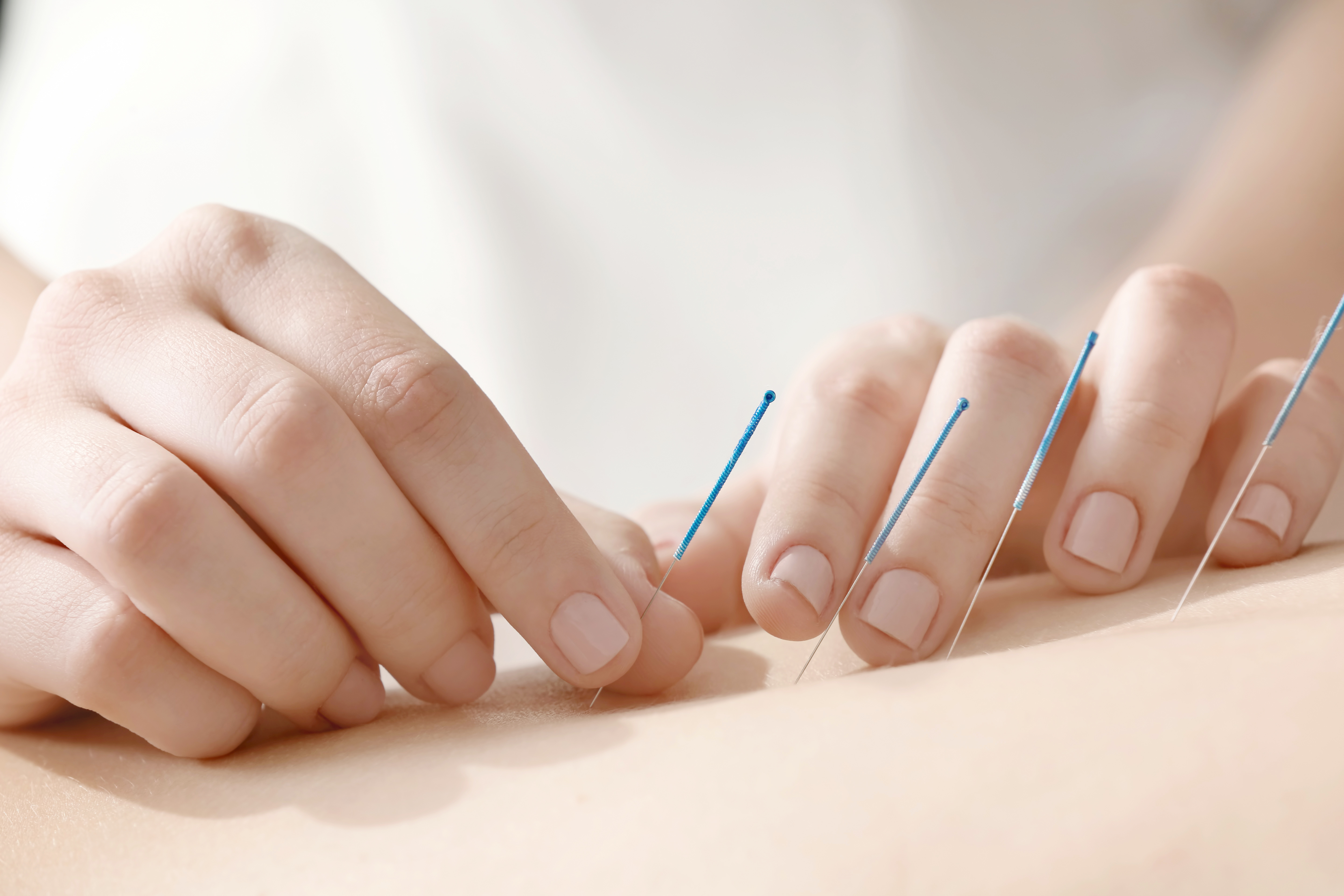 Straight Talk:  Ask An Expert | Managing Treatment Side Effects with Acupuncture