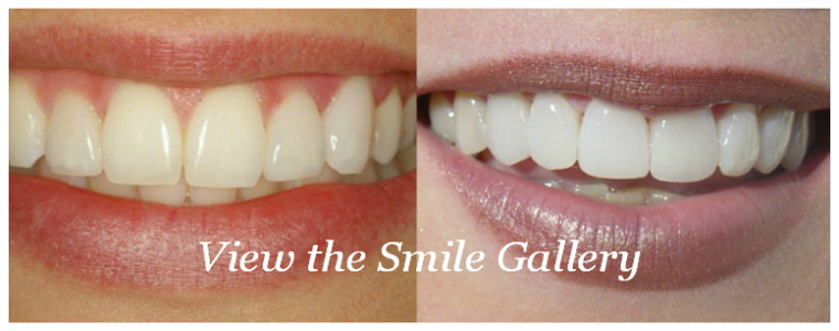 Cosmetic Dentistry Smile Gallery
