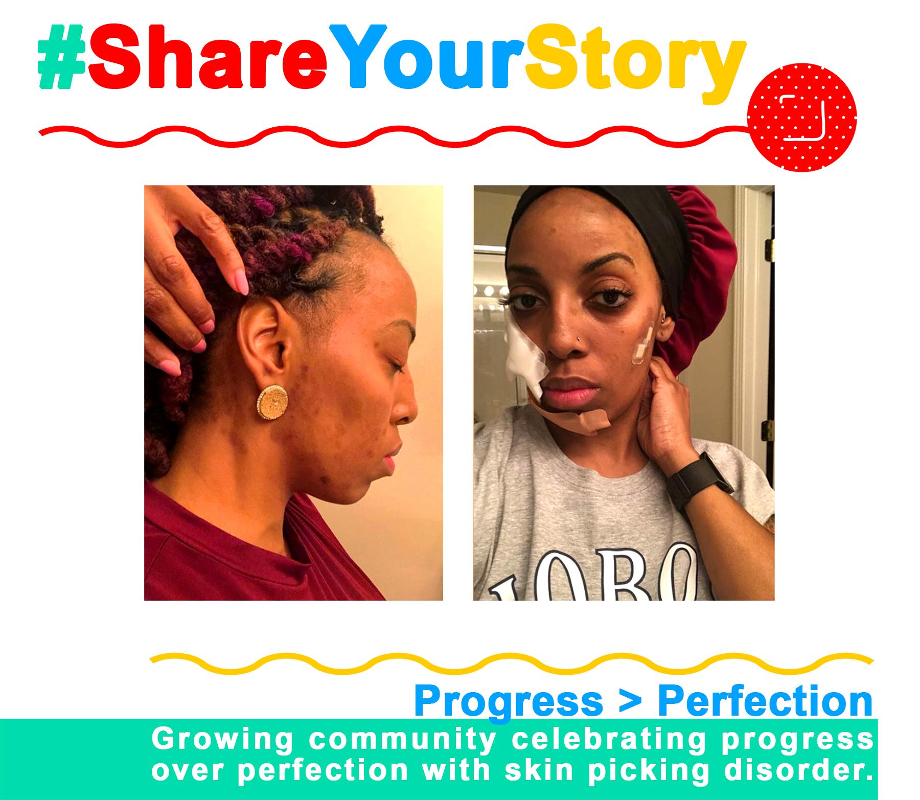 #ShareYourStory: Shemika