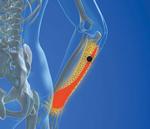 Little League Elbow & Medial Epicondylitis