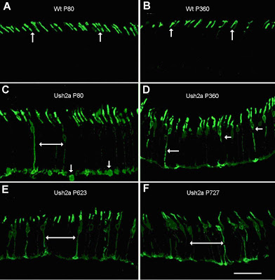 A picture of Opsin protein localization in control and Ush2a mouse photoreceptors
