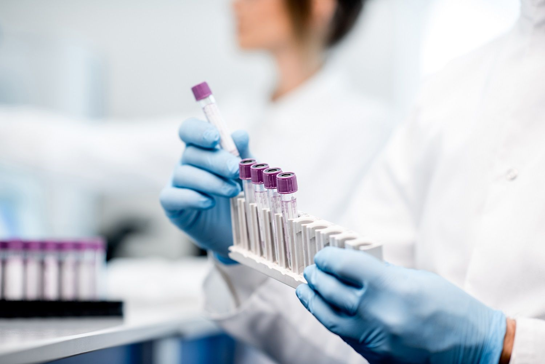 Common lab tests