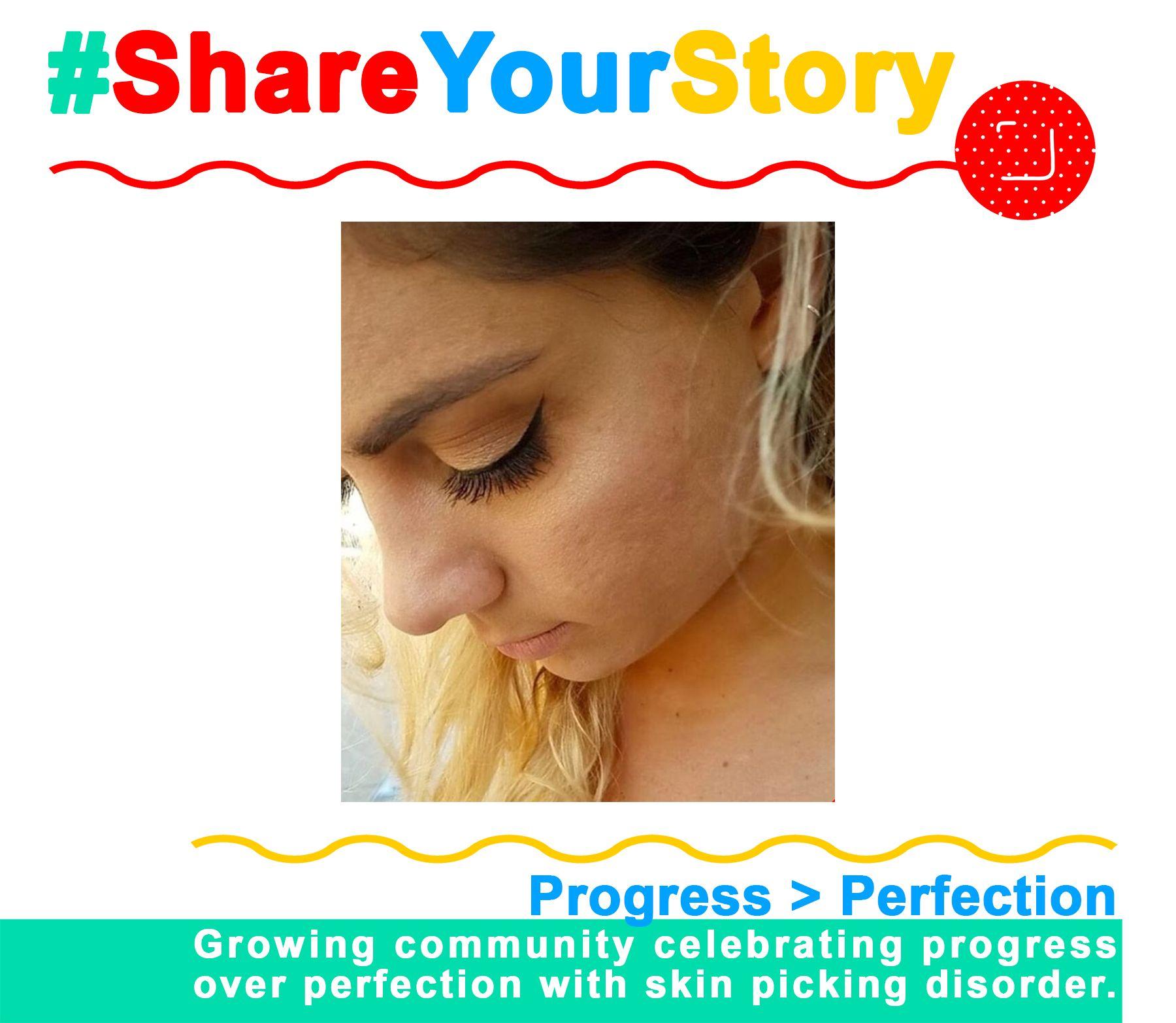 #ShareYourStory: Franki