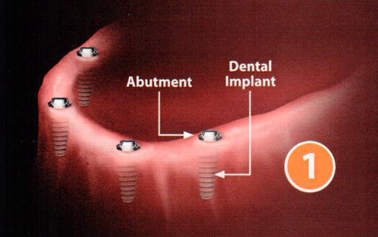 The Implant Procedure