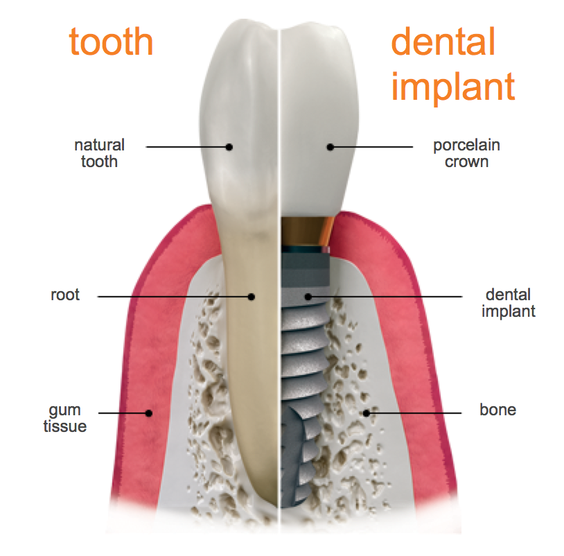 The special benefits of dental implants.