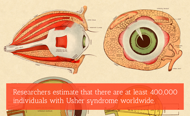 "Diagram of an eye with various parts labelled. Text overlay reads ""Researchers estimate that there area t least 400,000 individuals with Usher syndrome worldwide."""
