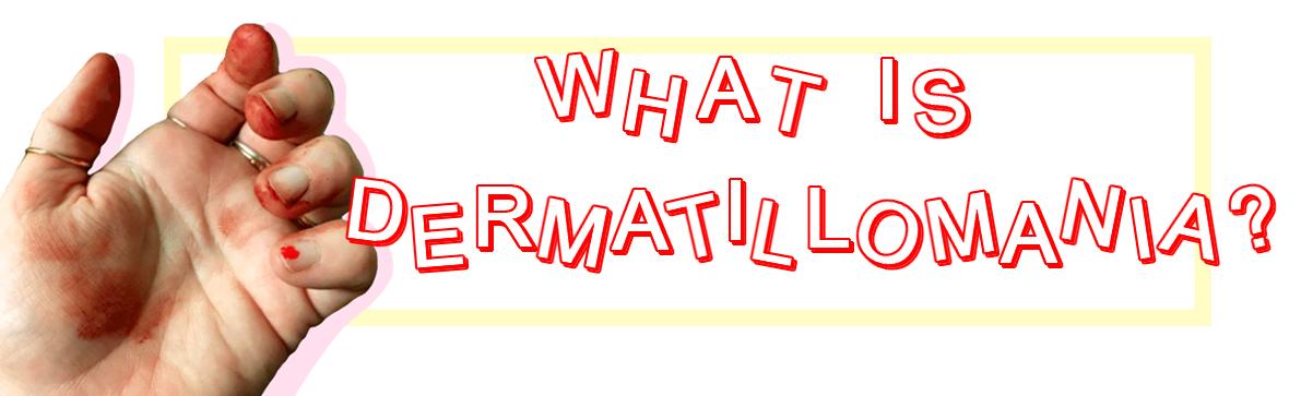 Dermatillomania aka Skin Picking Disorder/ Excoriation