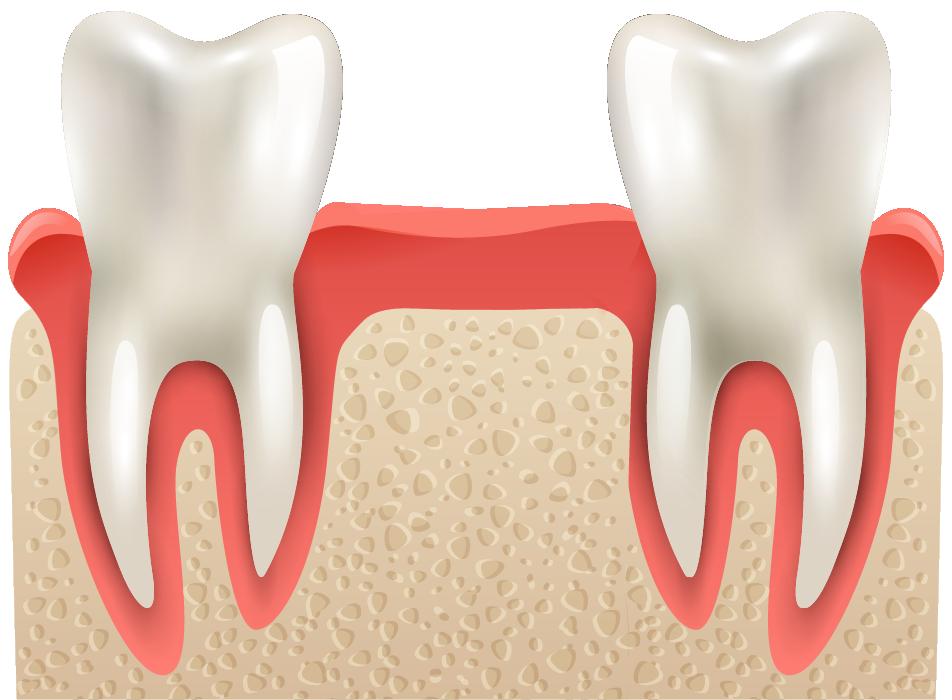 AFTER: Bone Augmentation