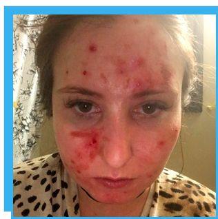 Dermatillomania Aka Skin Picking Disorder Excoriation Excoriation Compulsive Skin Picking Nodule Excoriee Acne Excoriee