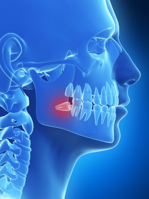 implacted wisdom teeth removal