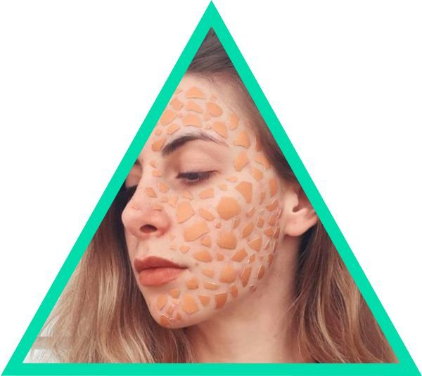 #WhatsWith YourSkin