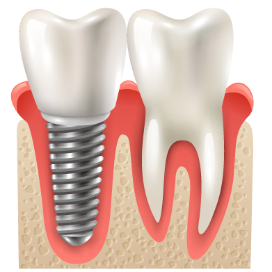 Dental Services | Dental Implant Surgery | Dental Implant Dentist | Dental Surgery | Lincoln, NE |  Nebraska Oral & Facial Surgery