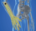 Radial Nerve & Hand Pain