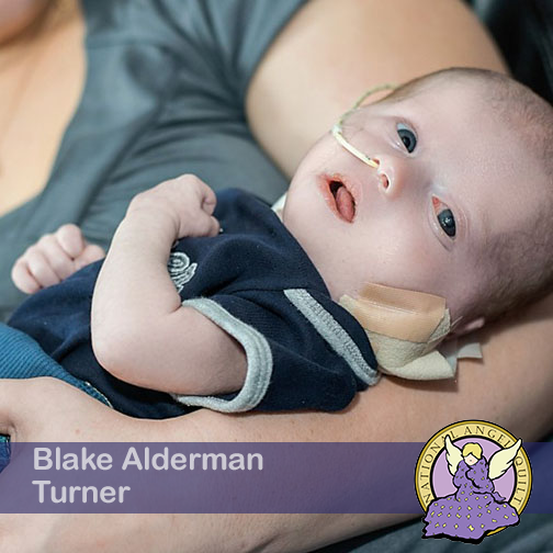 Blake Alderman Turner
